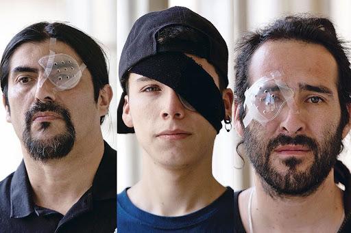 Victimas Trauma Ocular